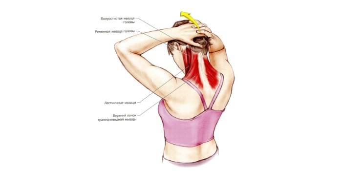 7 упражнений при защемлении нерва в шейном отделе