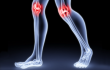 Изображение - Чем лечить суставы ног в домашних условиях vospalenie-sustavov_w110_h70