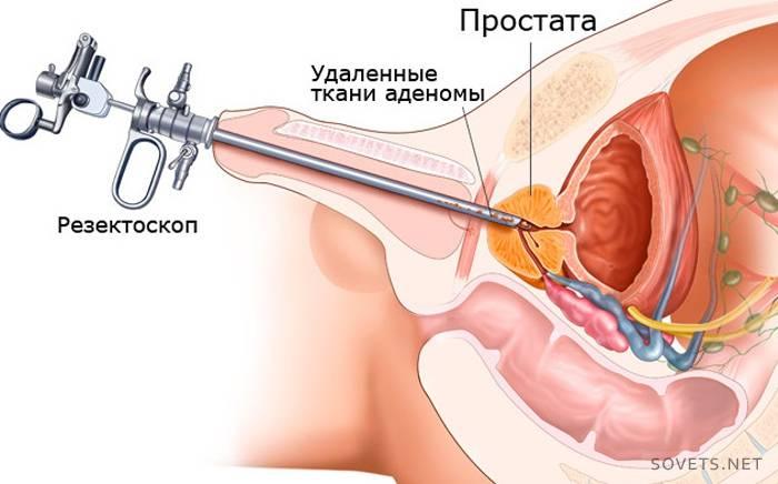 Малоинвазивные способы лечения аденомы простаты