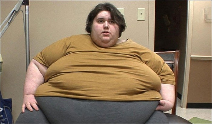 Ожирение - повод для обращения к врачу