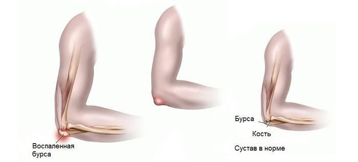 Сравнение здорового и воспаленного локтевого сустава