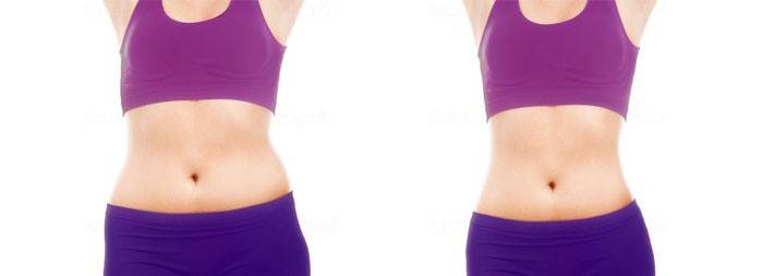 Живот девушки до и после водной диеты