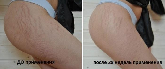 Результат применения мумие от растяжек