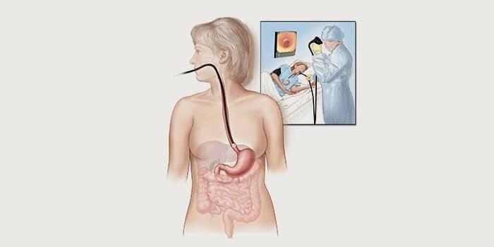 Диагностика дуоденогастрального рефлюкса - гастроскопия