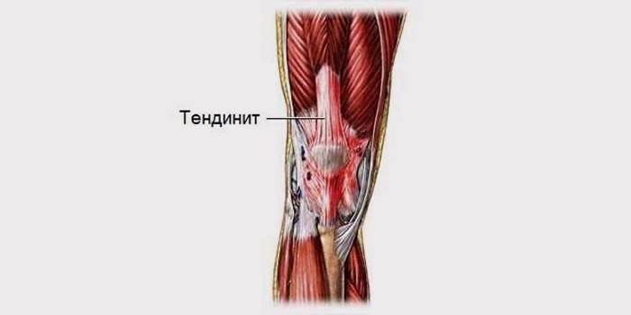 Локализация тендита в коленном суставе