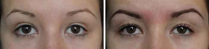 Фото до и после покраски бровей
