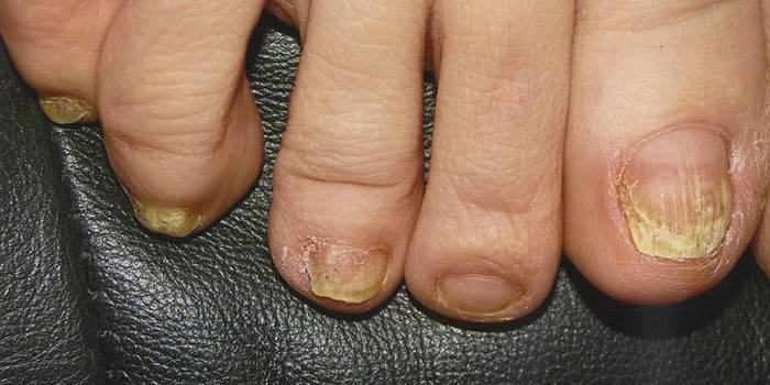 Запущенная стадия грибка на пальцах ног