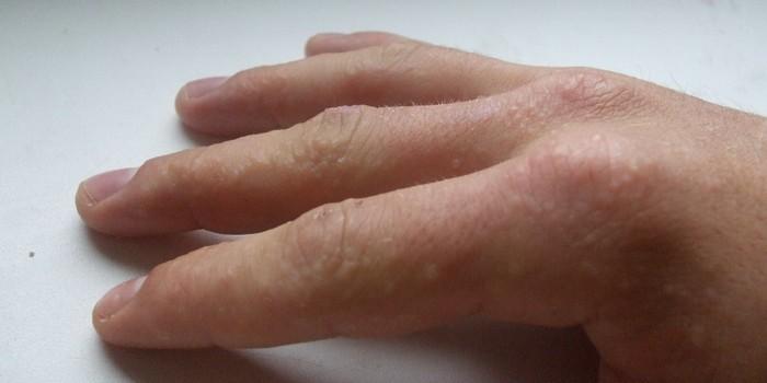 Водяные прыщи на пальцах