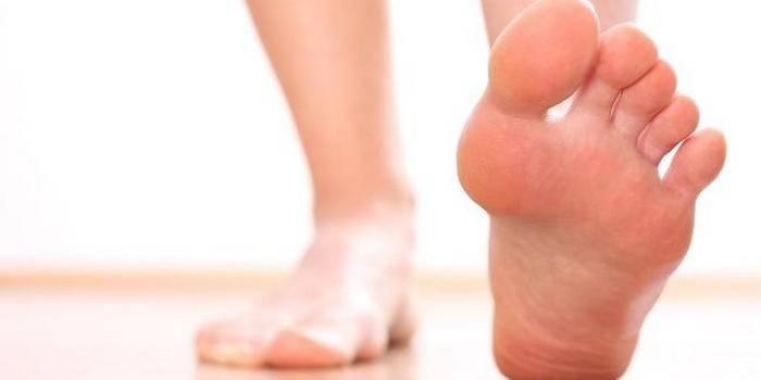 Мозоль на пальце ног