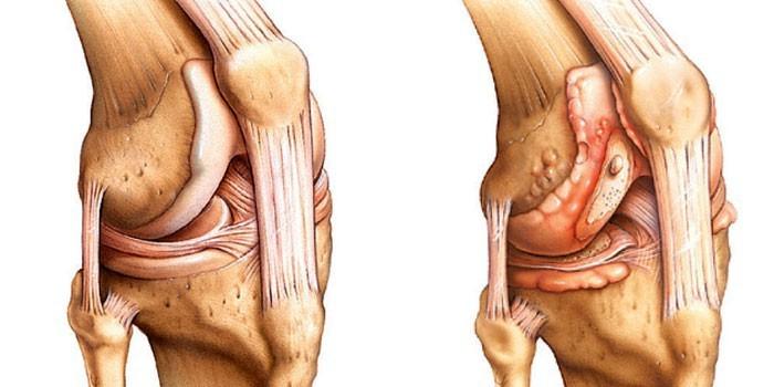 Боль в коленной чашечке при сгибании