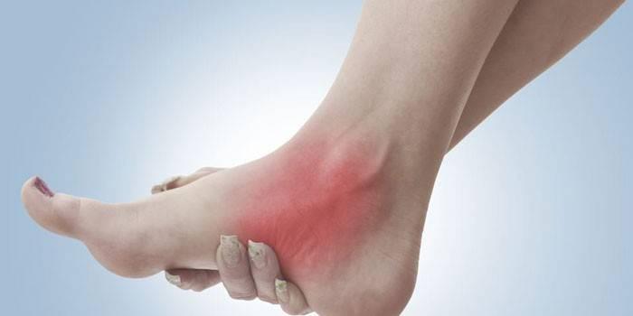Боль в ступне у женщины