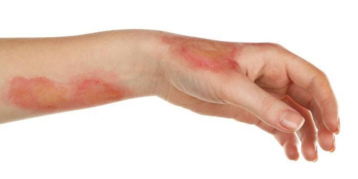 Ожоги на коже руки