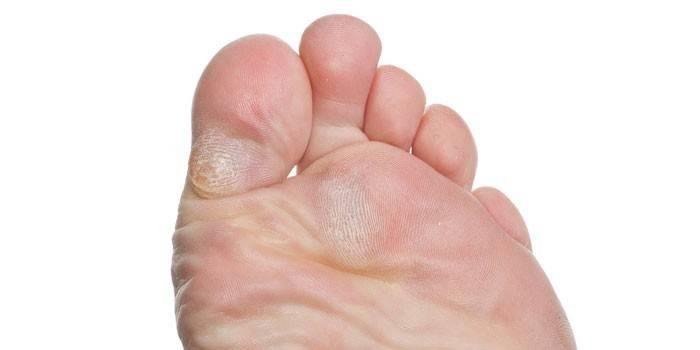 Сухие мозоли на ноге