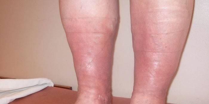 Проявления венозной недостаточности на ногах