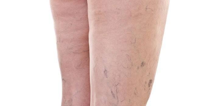 Варикозная болезнь на ногах