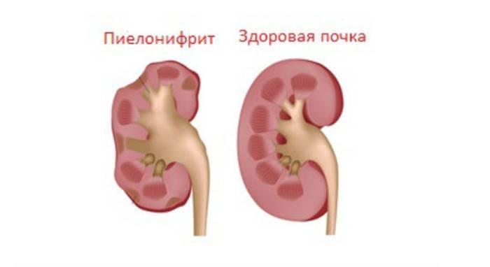 Схема здоровой почки и пораженной пиелонефритом