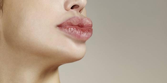Опухшие губы с язвочками
