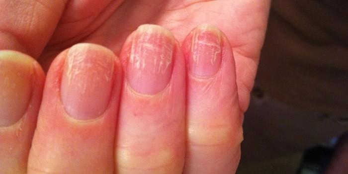 Народные средства для борьбы с грибком ногтей