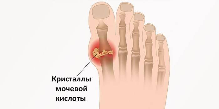 Кристаллы мочевой кислоты в суставе