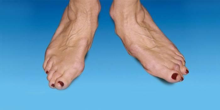 Чем лечить голеностопный сустав на ногах